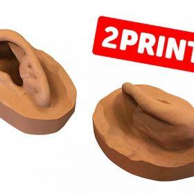 Mit 3D Druck zur neuen Prothese